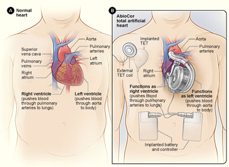 Normal heart and AbioCor total artificial heart