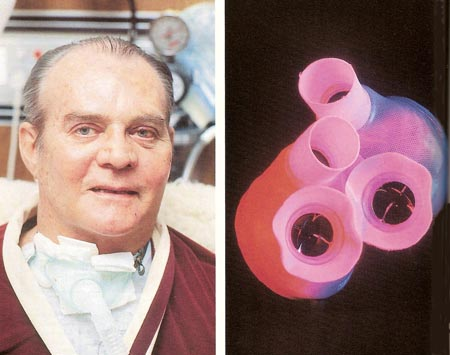 Dr. Barney Clark and the Jarvik-7 artificial heart he received