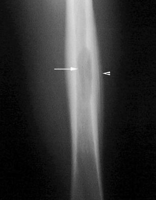 Ewing's sarcoma of the femur