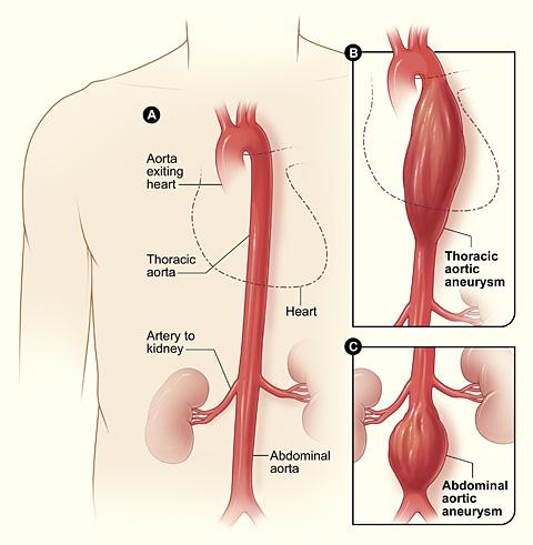 ruptured  aorta