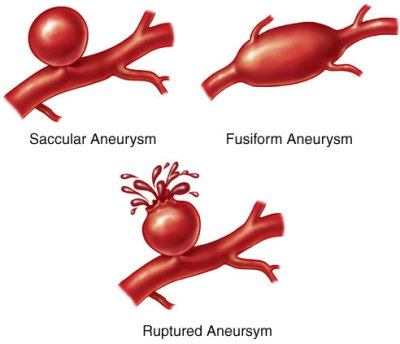 define aneurysm | dictionary and thesaurus, Human Body