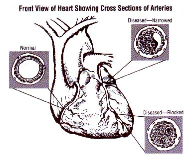 heart, with cross sections of arteries