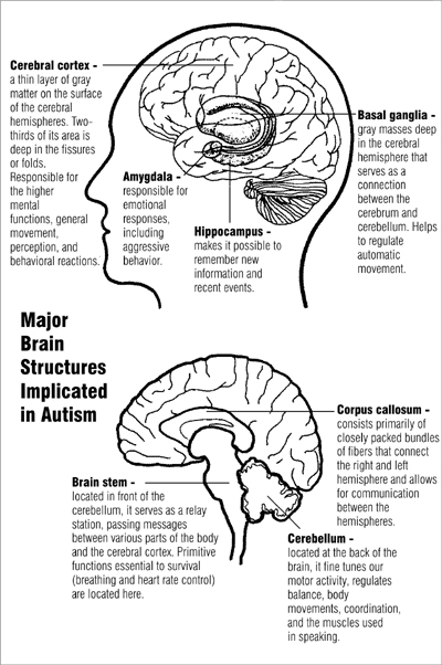 major brain structures implicated in autism