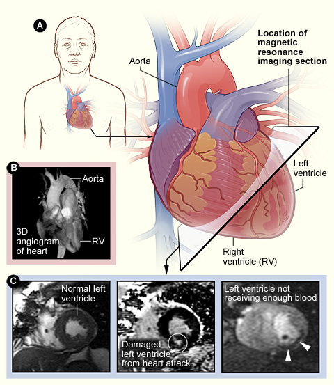 MRI imaging of the heart