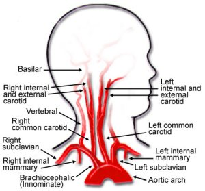 Common Carotid Artery