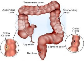 colon cancer and polyps