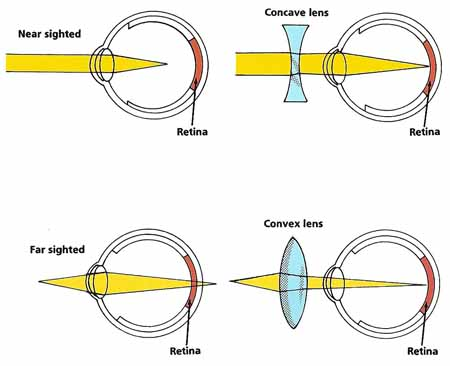 corrective lenses for eyes