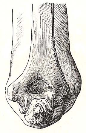 Relation of bones of the elbow to the surface. Dorsal view; elbow bent