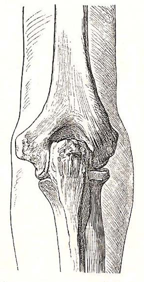Relation of bones of the elbow to the surface. Dorsal view; elbow fully extended