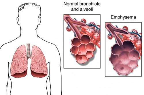 alveoli affected by emphysema