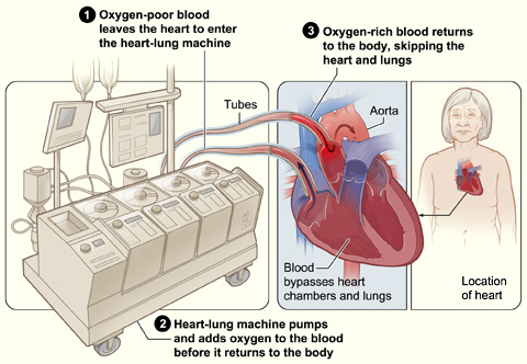 heart-lung machine