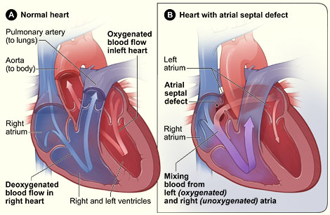 normal heart and heart with atrial septal defect (ASD)