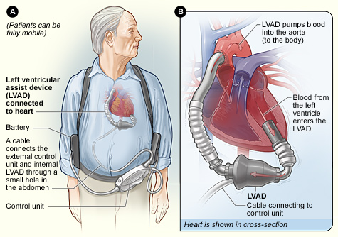 implantable ventricular assist device