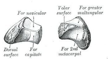 left lesser multangular bone
