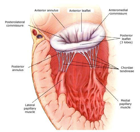 In mitral valve regurgitation,