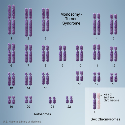 monosomy in Turner's syndrome