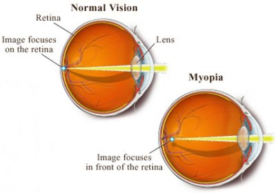myopia of learning Myopia research al-bdour md, odat ta, tahat aa myopia and level of educationeur j ophthalmol, 2001 jan-mar 11(1):1-5 purpose: to find out whether the development of myopia is related to the level of education.