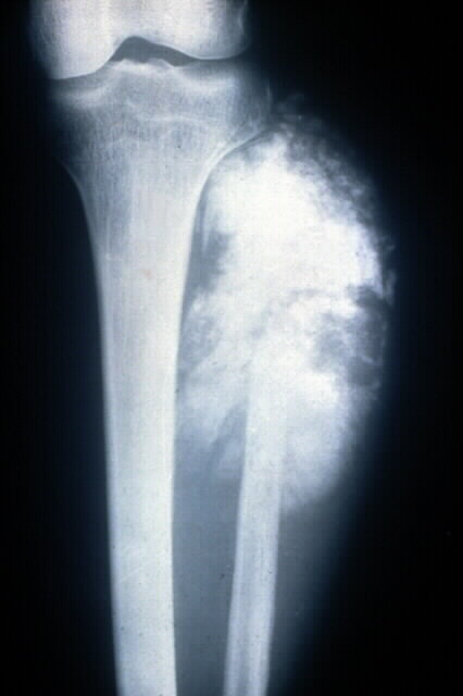 cloudy X-ray appearance of osteosarcoma