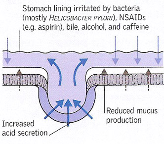 stomach lining irritation by bacteria