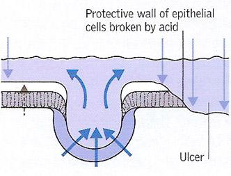 development of a peptic ulcer