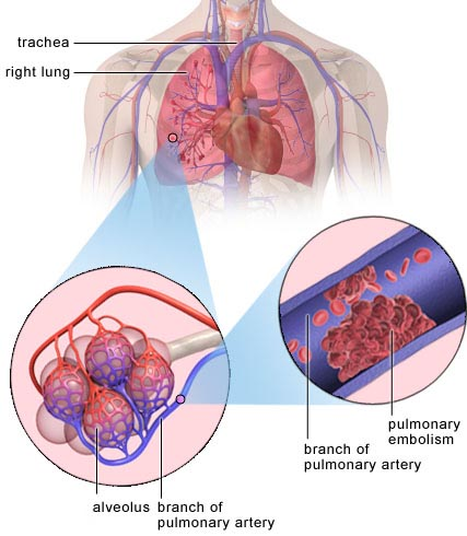 pulmonary_embolism, Skeleton