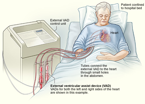 transcutaneous ventricular assist device