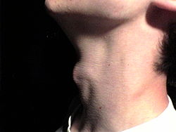 Example of an Adam's apple