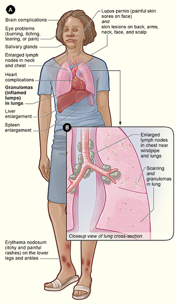 sarcoidosis signs and symptomse