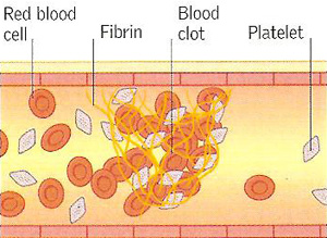 Blood clot within a blood vessel