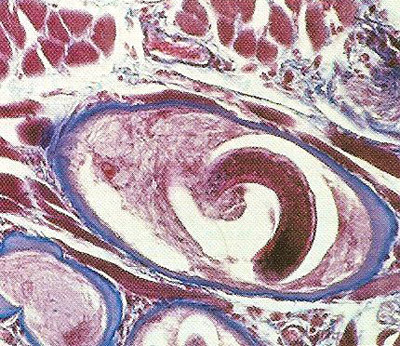 Light micrograph of tissue taken from a biosopy sample taken from a patient's muscle shows a cyst formed by a Trichinella spiralis larva, an infestation of which causes trichinosis