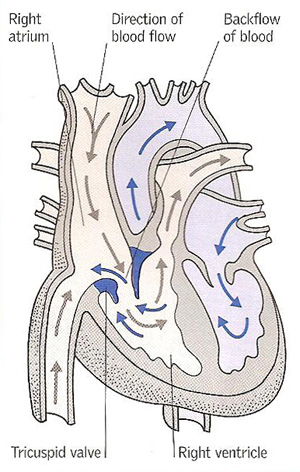 tricuspid incompetence