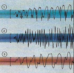 epileptic seizure brain waves